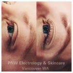 Pacific Northwest Electrology & Skincare